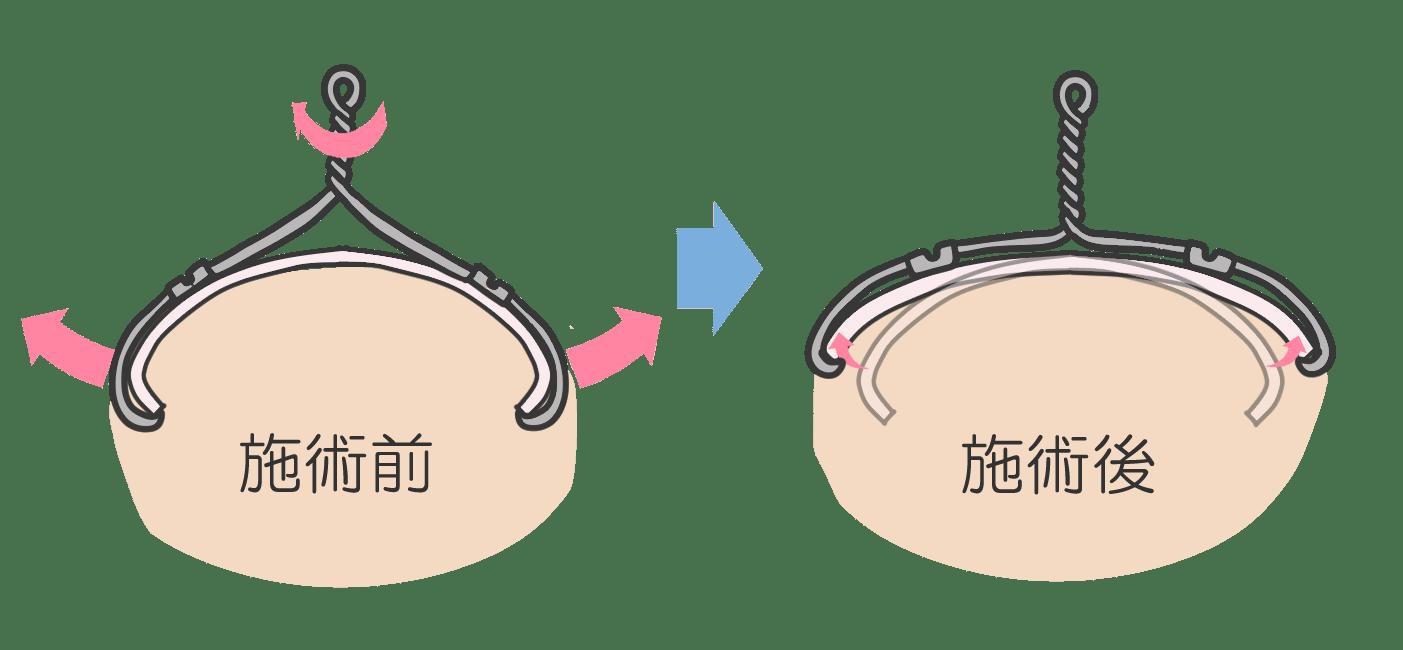 爪が短くワイヤーが使えない巻き爪には<br>  コレクティオチタンによる爪矯正をお勧めします