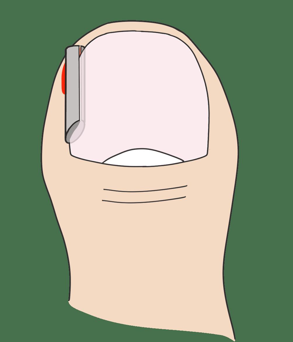 アクリルチューブを切り<br>  爪と肉芽の間に挿入します。