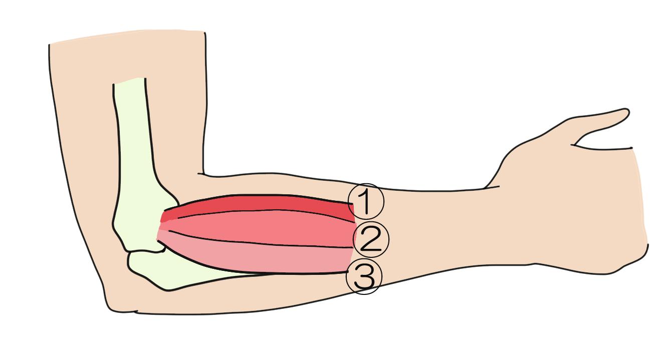 筋肉が原因!?<br>  原因となるのはこの筋肉です