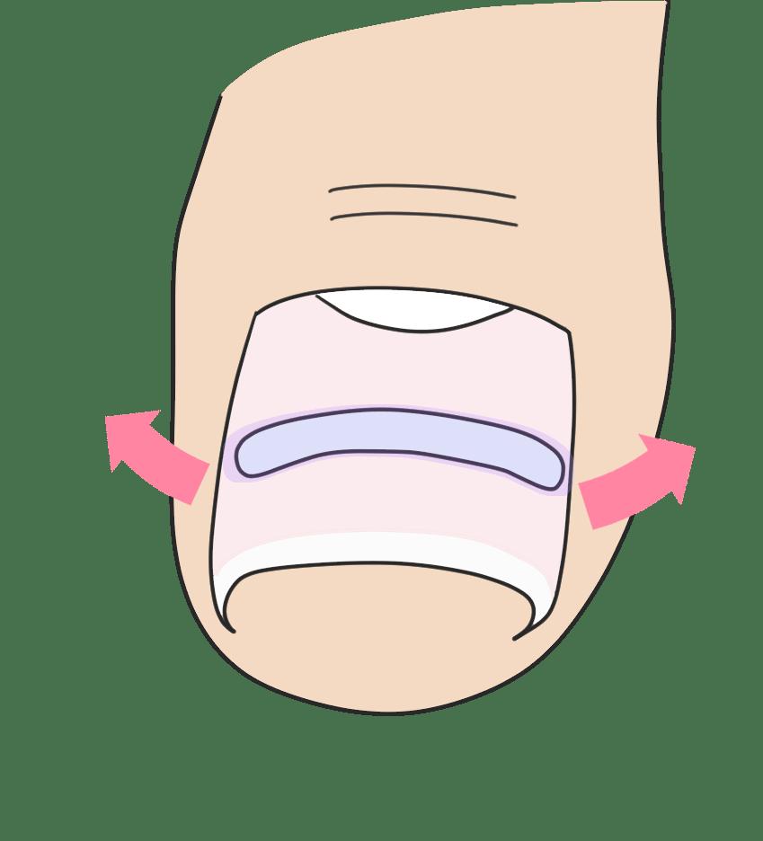 付け根から変形している巻き爪なら<br>  B/Sスパンゲ法による爪矯正をお勧めします