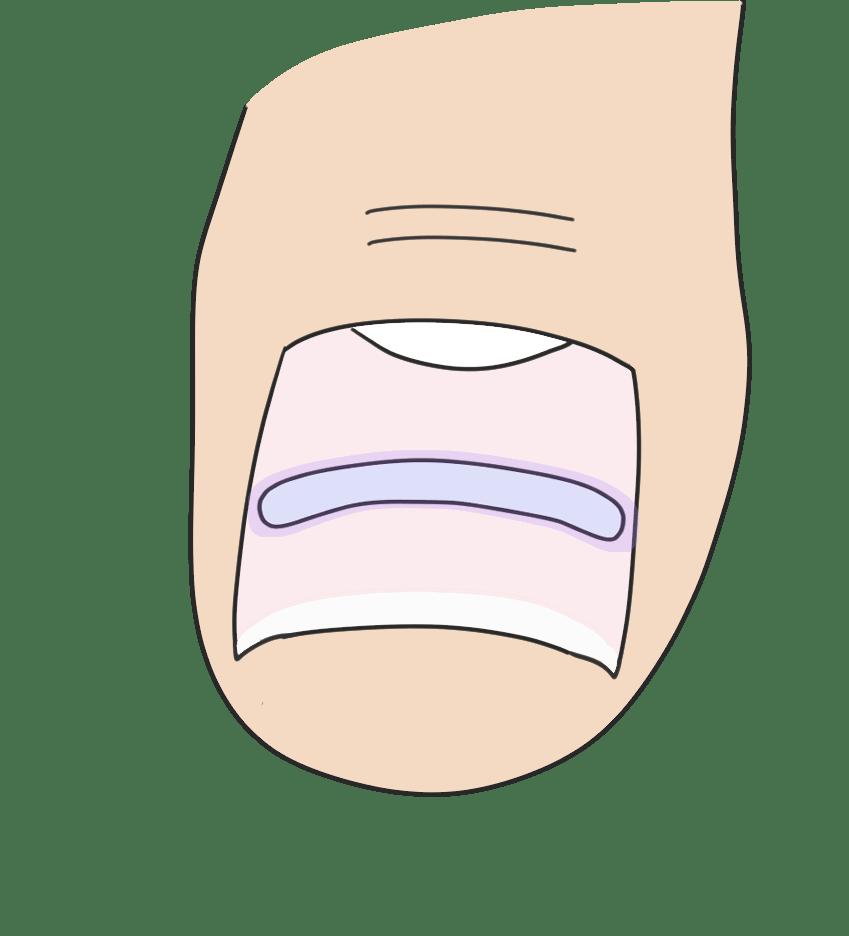 B/Sスパンゲ法についてのイラスト