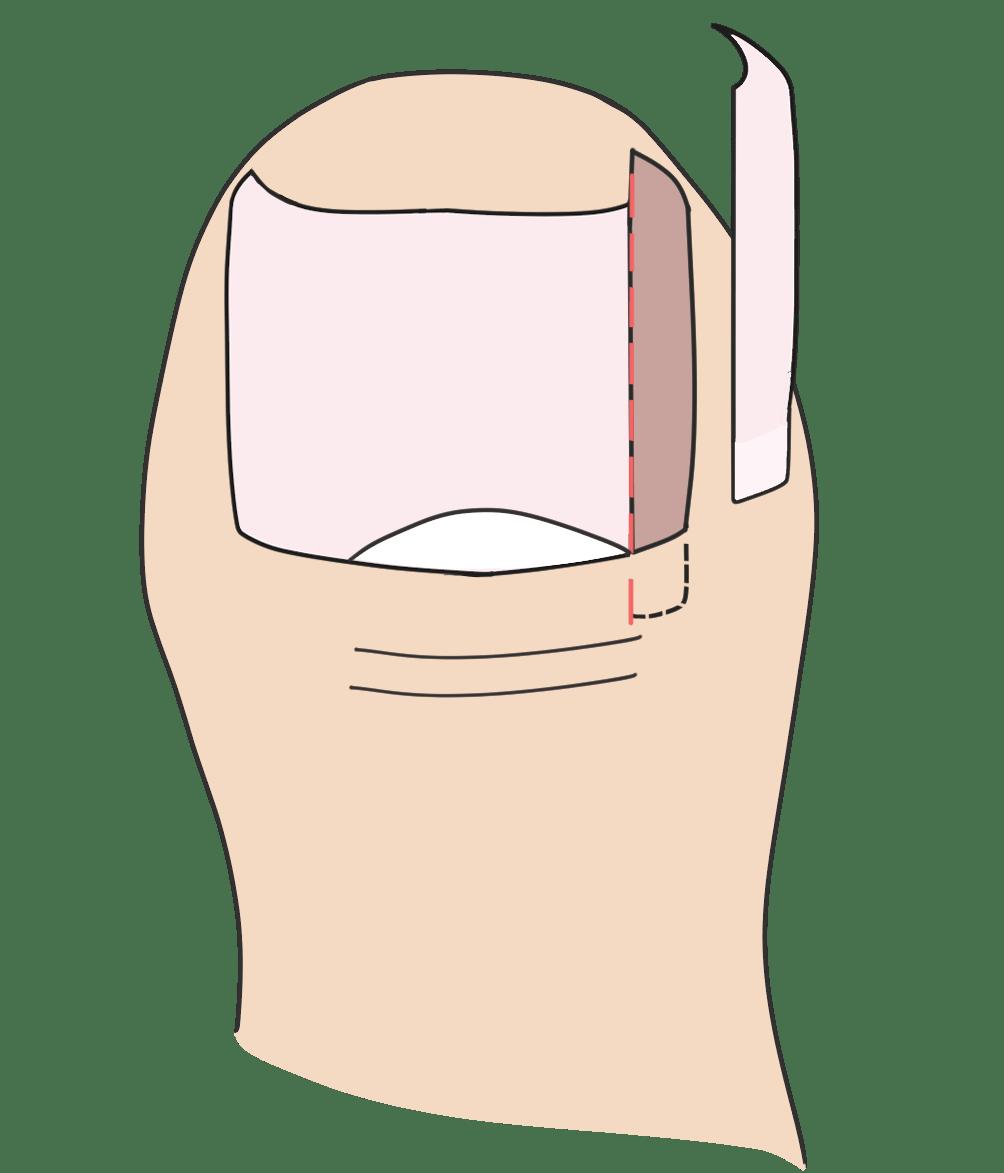 切った爪を取り除きます
