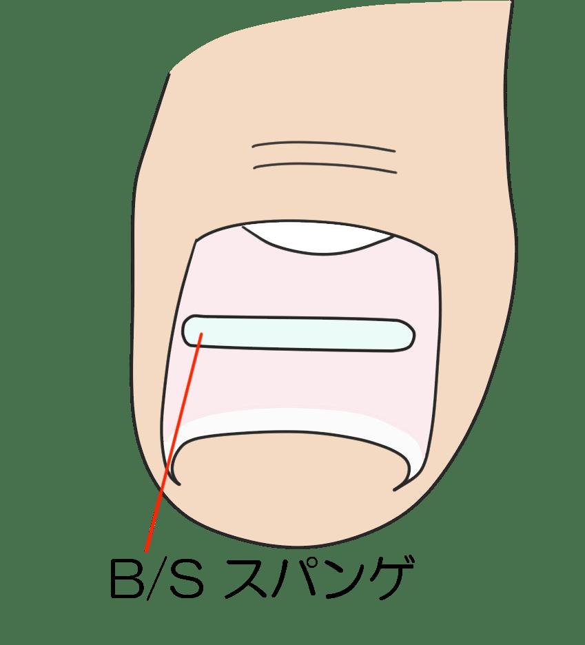 B/Sスパンゲの適切なサイズを選びます