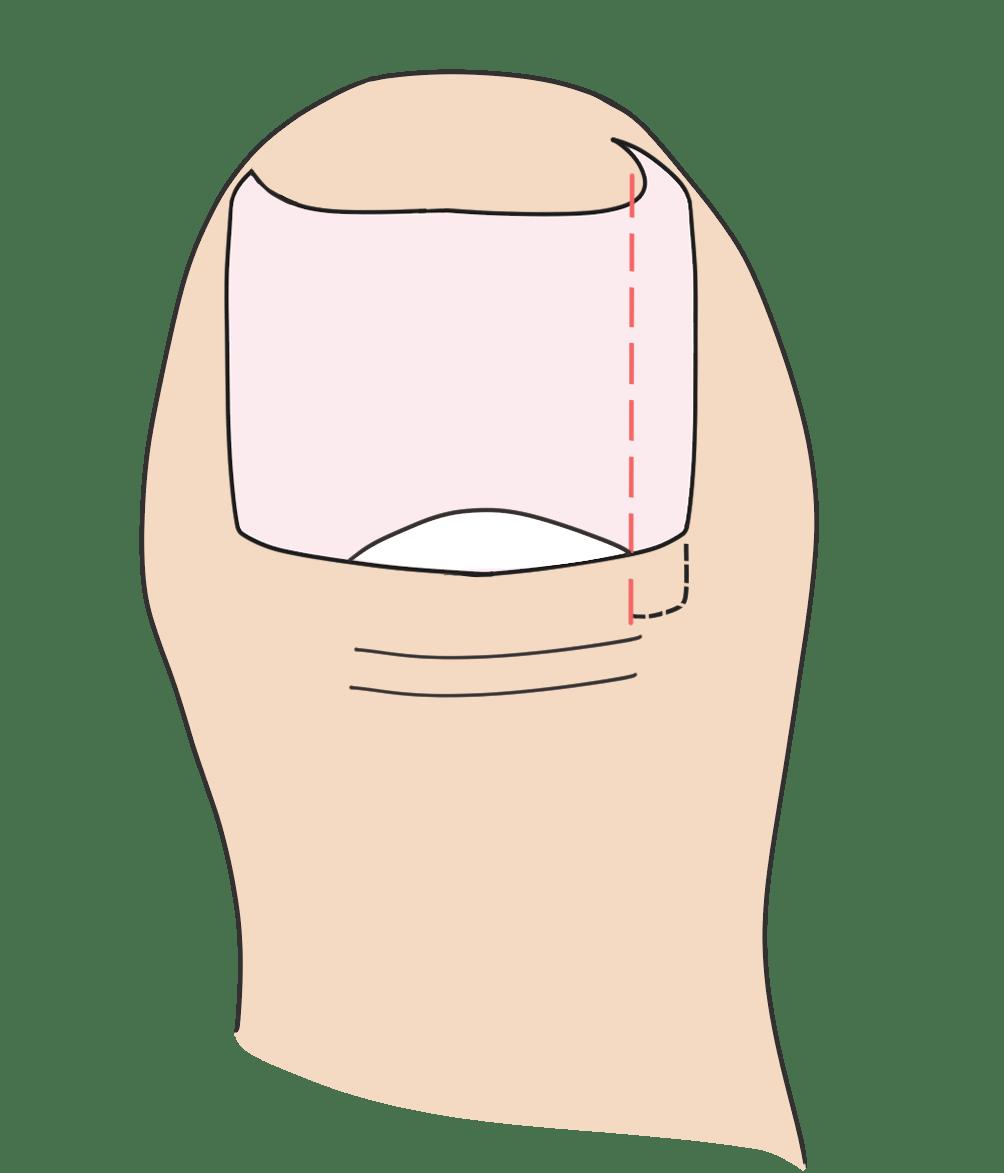 爪の端を特殊なハサミで切っていきます