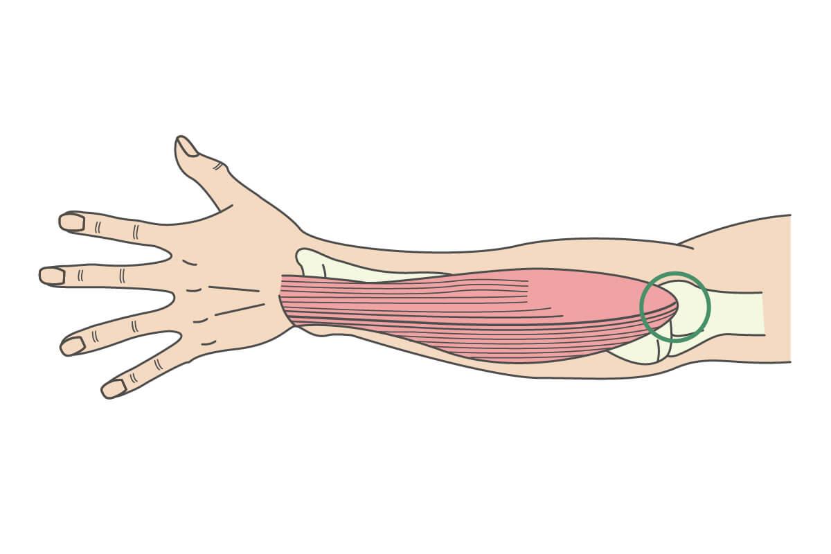 上腕骨外側上顆炎についてのイラスト