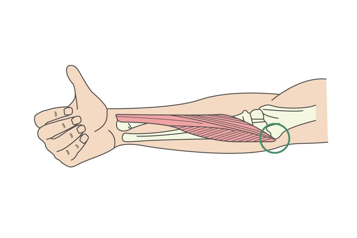 上腕骨内側上顆炎についてのイラスト