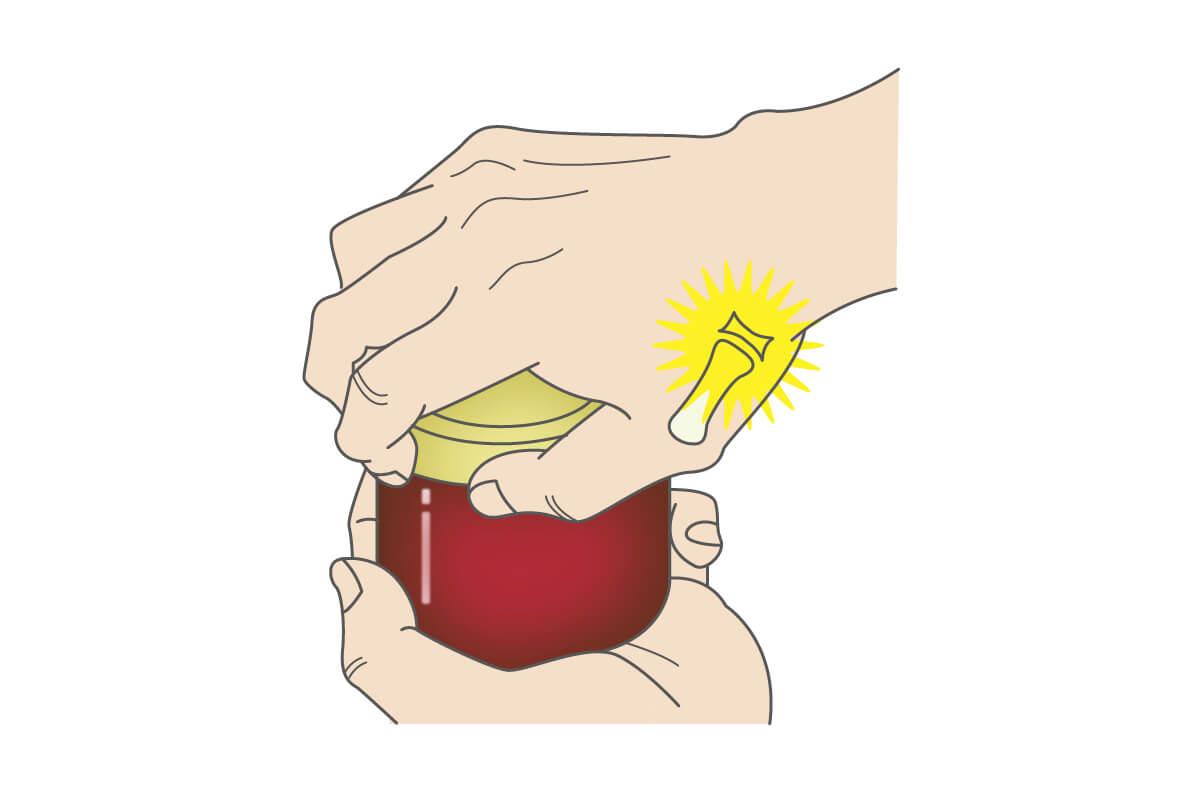 ビンの蓋を開けるとき母指の付け根が痛い!<br>  それは母指CM関節症が原因かもしれません